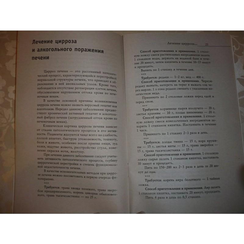Лечение болезней печени (фото 7)