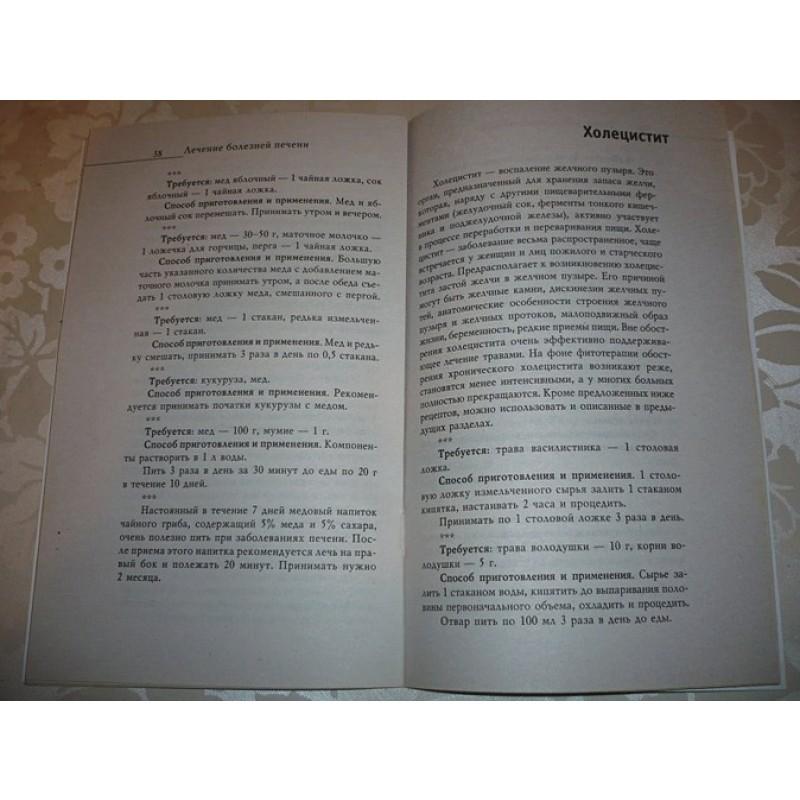 Лечение болезней печени (фото 9)